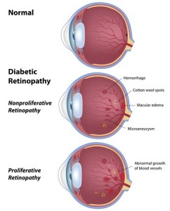 11578735 - diabetic retinopathy, eye disease due to diabetes