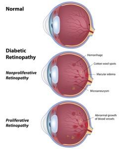 definición mellitus diabetes macular