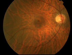 macular hole ophthalmologists gettysburg pa md greater potomac